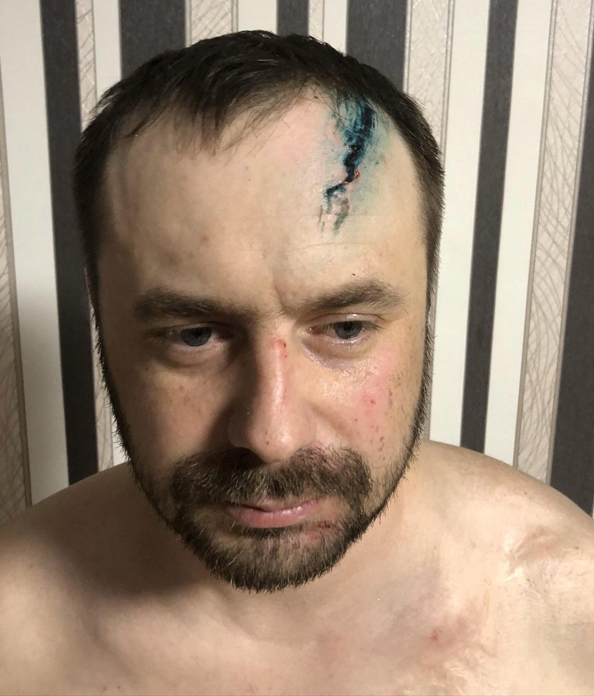 «Думал, это бандиты». После встречи с росгвардейцами пермский бизнесмен попал в больницу и стал обвиняемым